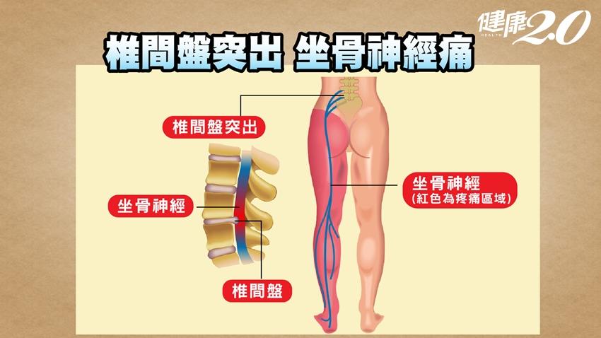 腰痛是肌肉痛、內臟痛、還是坐骨神經痛?骨科醫教你10秒揪出兇手