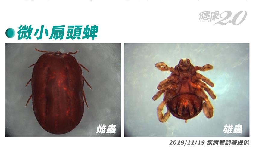 國內首例!7旬男發燒嘔吐,竟是中日韓都流行的「這種傳染病」