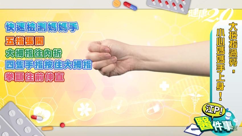 「比讚」為何大拇指劇痛?江坤俊教你只要1條橡皮筋,就能預防媽媽手