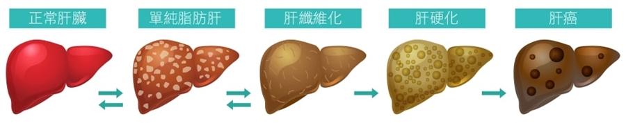 「脂肪肝」原因不只酗酒、肥胖,3件事讓脂肪肝消失