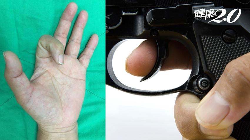 手指一彎就回不來!板機指最常找上「這年齡」女性