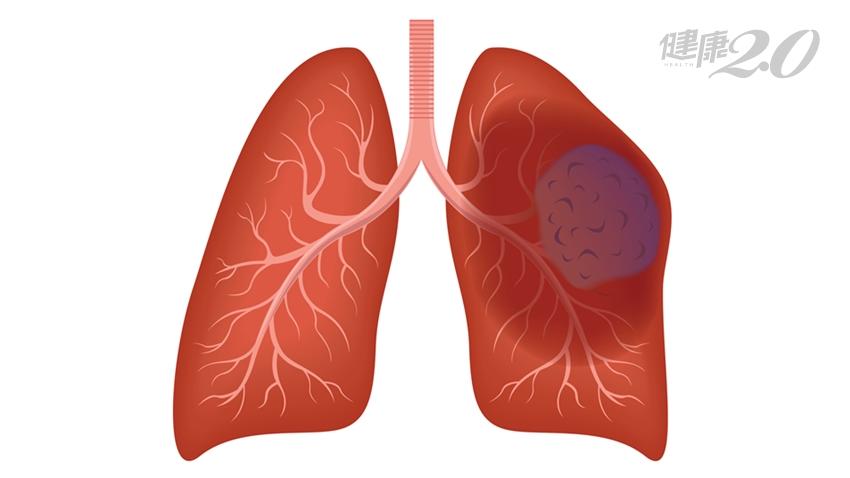 女性肺癌人數10年翻倍!除了會喘,這些症狀多留意
