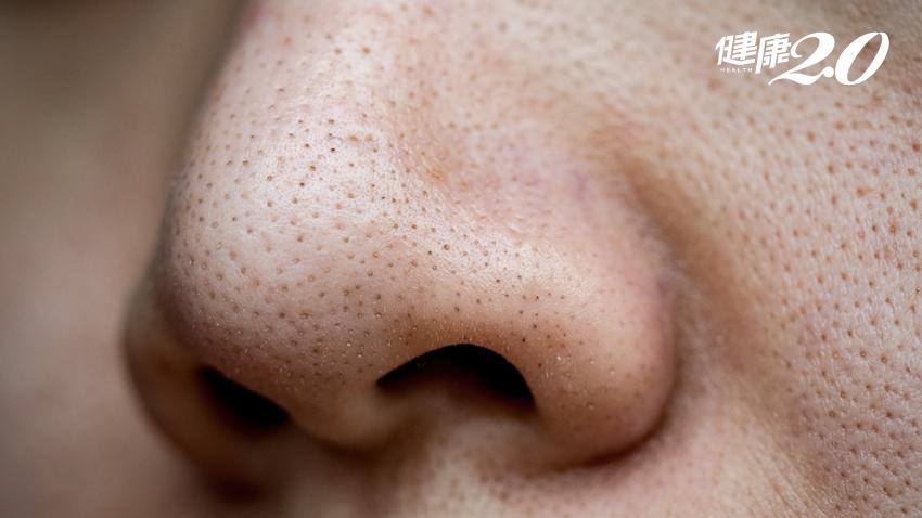 鼻貼除粉刺?你拔的不是粉刺啊!食藥署揭崩潰真相