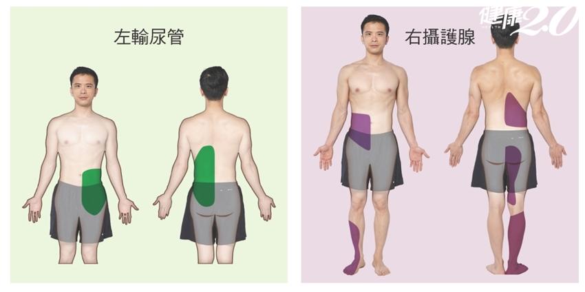 「右肩痛」竟是肝臟引起?「6種狀況」你的痛和內臟有關