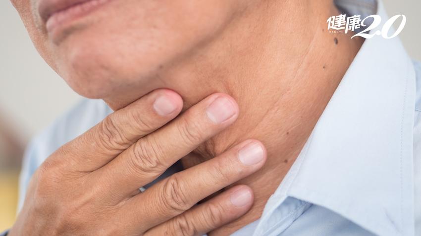 神乎其技!他罹喉癌切除食道 醫師取「這部位」妙手重建