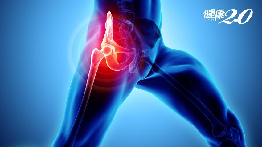以為肌肉痠痛,半年內髖關節骨頭壞死!出現4徵兆快就醫