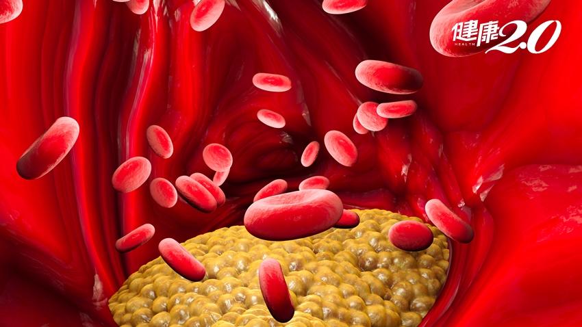 他的血液浮著一層牛奶白,還併發胰臟炎!血油高該怎麼辦?