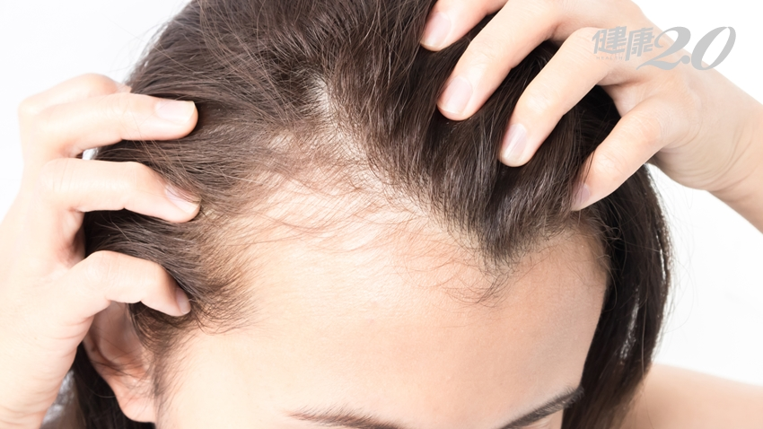 吃黑芝麻、抹生薑,能幫助生髮嗎?雄性禿最有效的治療是…