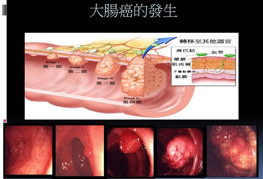 預防大腸癌,為何有人得一直做腸鏡追蹤?醫師:清腸藥吃錯等於白做