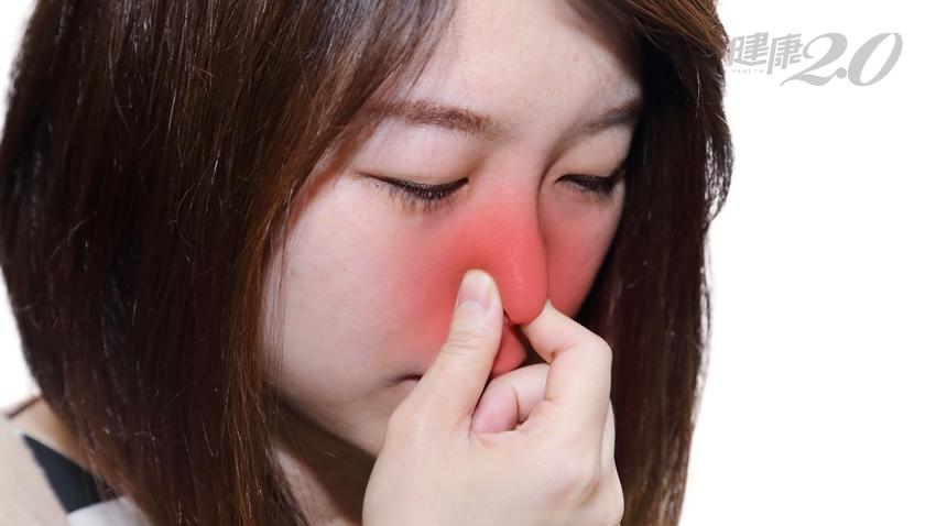 流黃鼻涕、嗅覺異常、臉脹痛…鼻竇炎恐怕找上你了