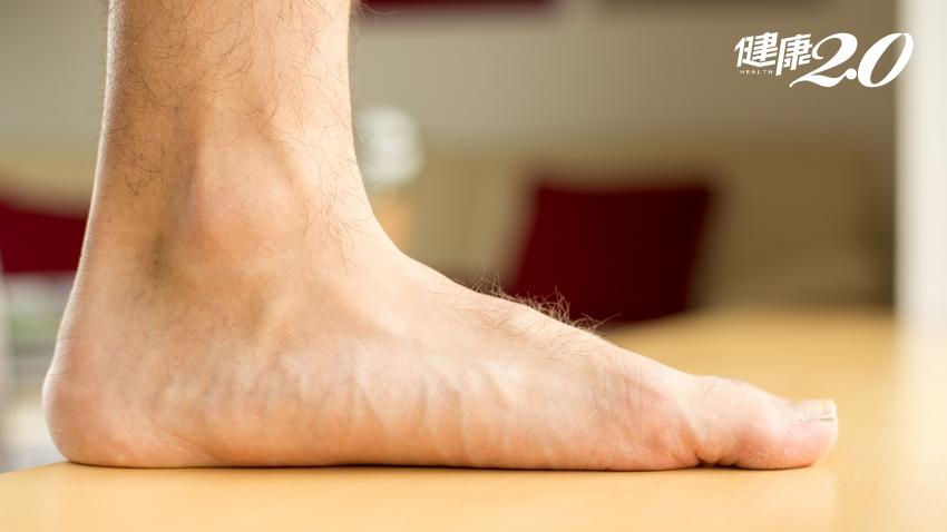 拇趾外翻、腰痠背痛和扁平足有關?復健科醫師沒告訴你的大祕密