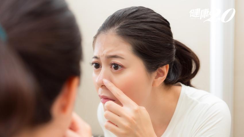 鼻子上的青春痘怎麼愈擠愈大?小心鼻淋巴癌