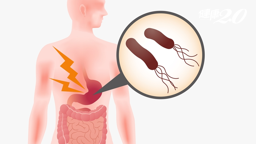 全世界一半人口帶有幽門桿菌!它有多危險,醫師告訴你