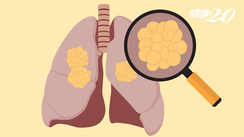 一次發現2個肺癌…1次胸腔內視鏡手術同時切除!