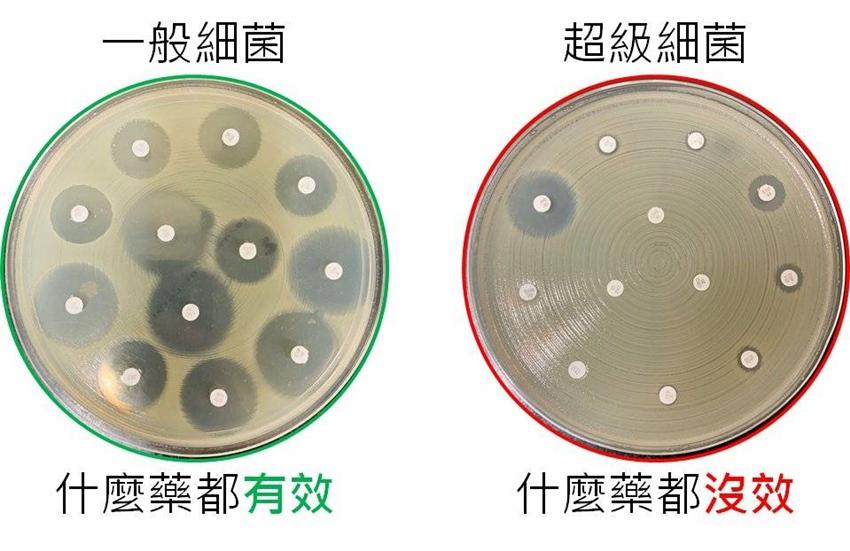 矽谷科技新貴染上「超級細菌」險喪命  長庚研發抓菌模型對症下藥