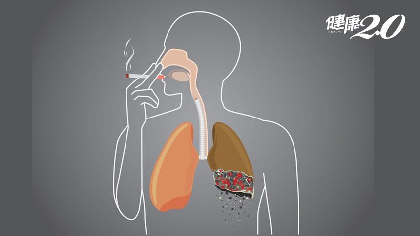 「最險惡肺癌」幾乎活不過1年!醫師呼籲只要做1件事就能預防