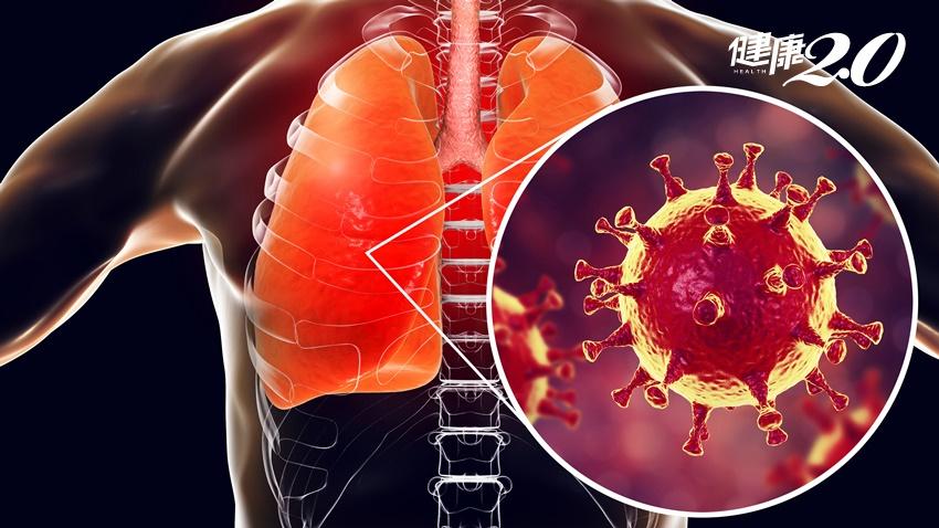 武漢肺炎確診為新型冠狀病毒!SARS、MERS都是冠狀病毒引起的