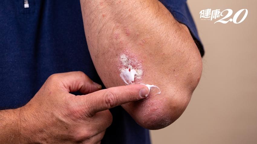 類固醇藥膏會讓皮膚變薄,能不擦就不要擦?