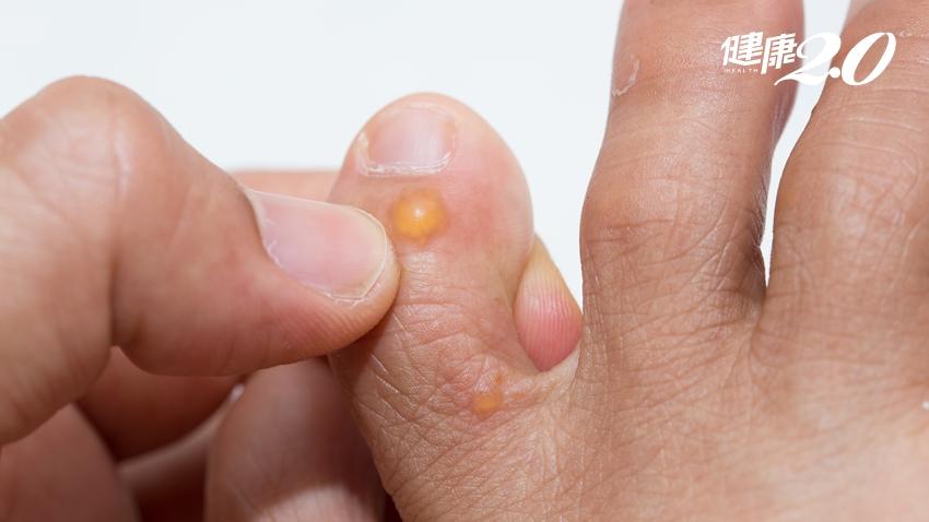汗皰疹會傳染嗎?皮膚科醫師提醒勿做1件事