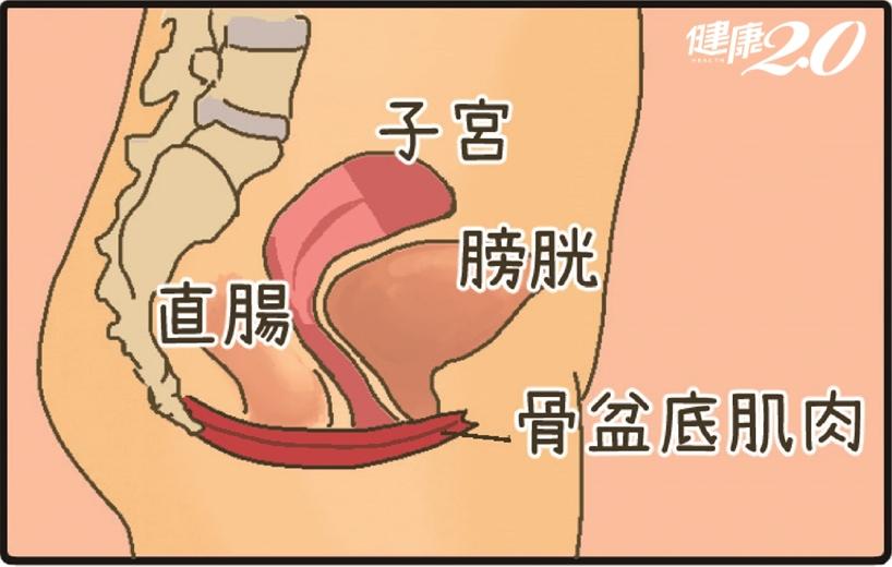 「有東西」從陰道掉出來…這個器官最常脫垂 這些女性要小心