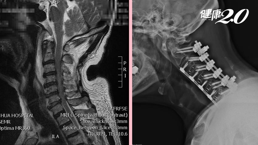 他頸椎重創癱瘓 努力復健2年現已能行走,連醫師也直呼奇蹟