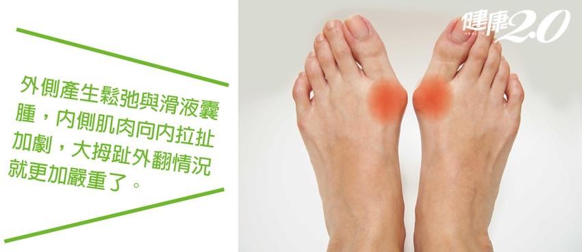改善「拇趾外翻」不惡化!每天回到家做「腳趾體操」有救