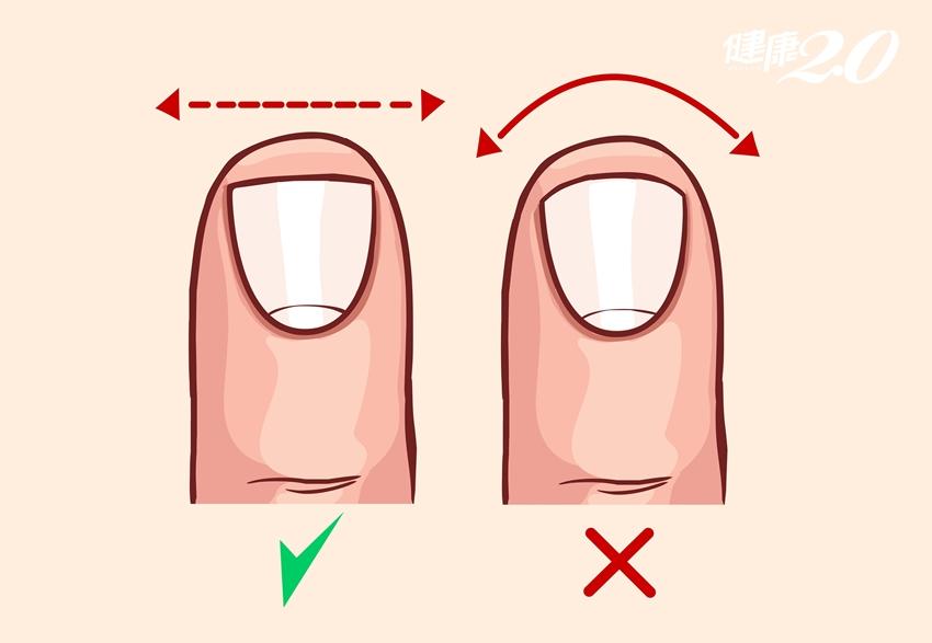 凍甲好痛!別亂剪,1首歌教你預防保養6重點
