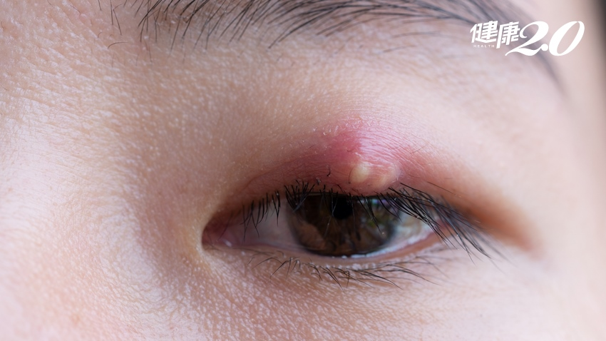 吃完薑母鴨竟長針眼 醫提醒這類年節零食也會