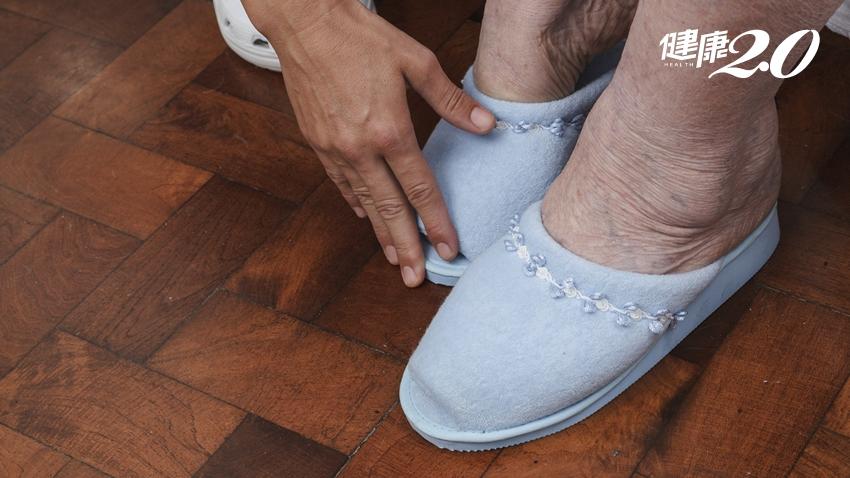 老婦左腳水腫一倍大,醫師察覺不單純!檢查驚見50公分靜脈血栓