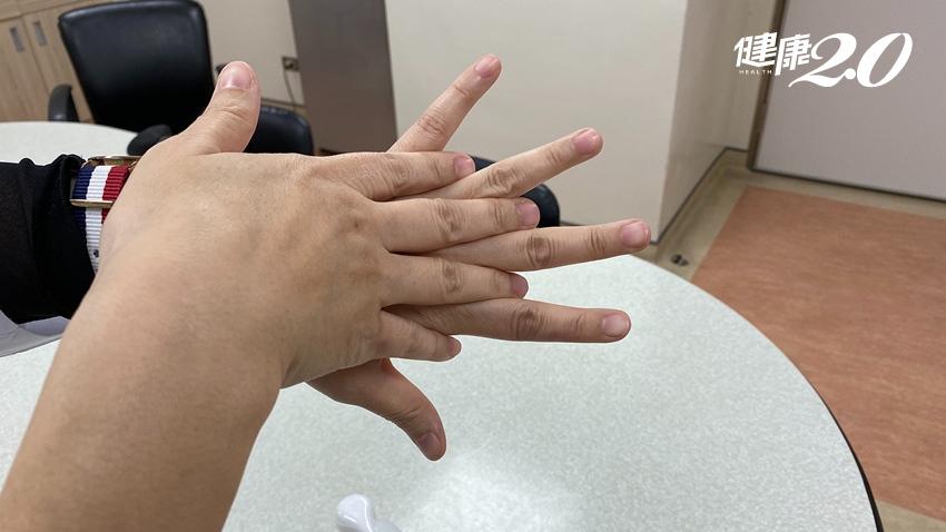 自製乾洗手酒精濃度這樣殺菌最好 加「它」可減少過敏