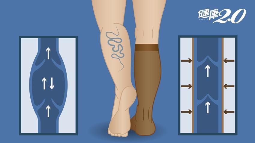 靜脈曲張如何治療? 除了穿彈性襪,3種情況這樣做