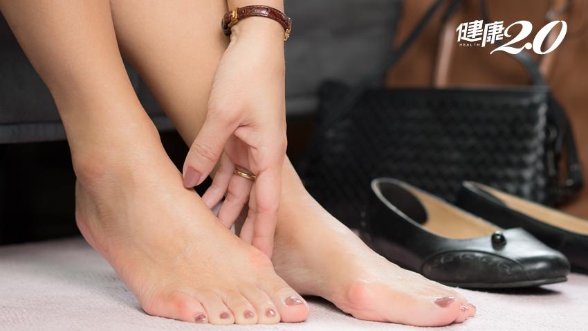 拇趾外翻用矯正器有用嗎?醫師告訴你根本解決之道