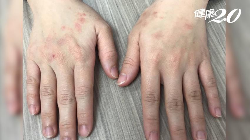「酒精洗手」洗出富貴手!皮膚科醫師:手部濕疹不要這樣洗