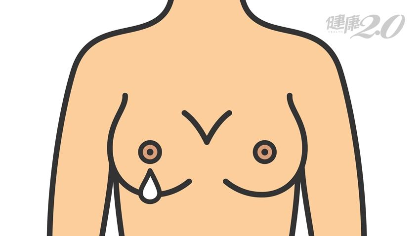 乳房分泌物是乳癌前兆?女性2個時期最常見,單側雙側原因大不同
