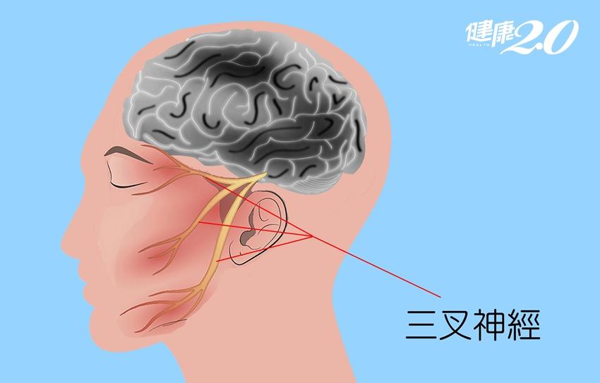 腦內「青春痘」刺激三叉神經、劇痛1年半 醫師細心刮除不痛了!