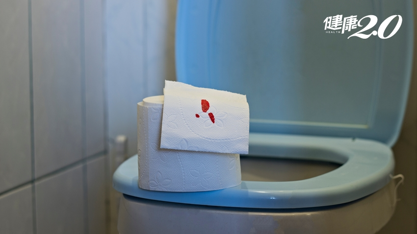 「大便有血」是痔瘡嗎?別鐵齒!醫師建議這樣做保健康