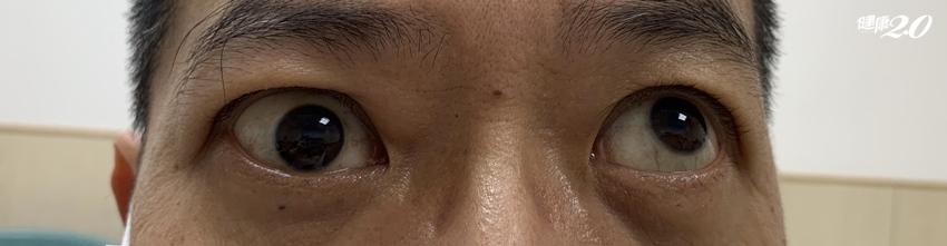 中年型男右眼無法轉動變斜視 竟是甲狀腺眼病變,嚴重會失明