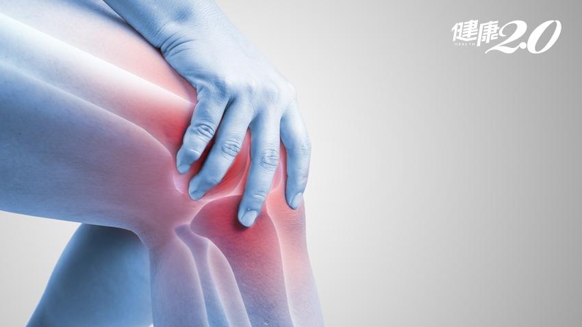「人工膝關節」能用多久?要換全膝還是局部置換?