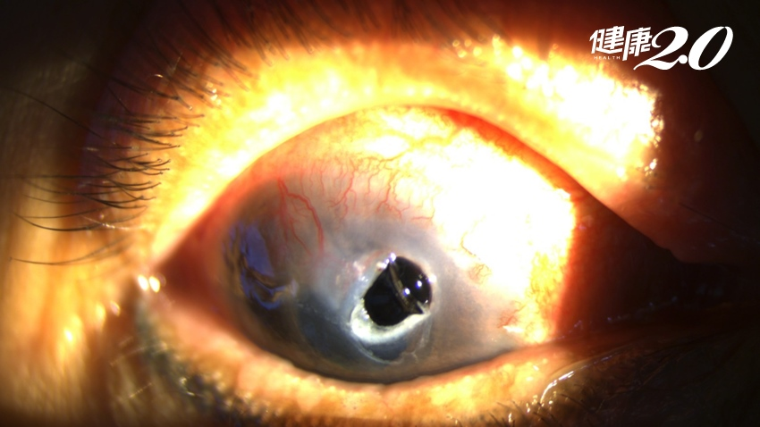 類固醇眼藥水是好藥!但婦人用錯竟角膜穿孔