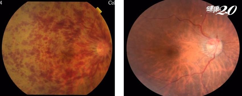 拍照總是抱怨「鏡頭霧霧的」?黃斑部水腫新藥可救回惡視力