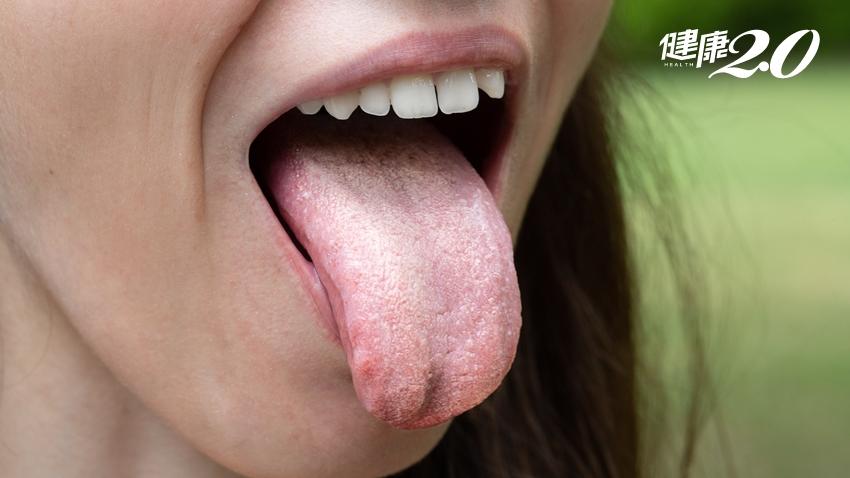 嘴巴有小白點,刷牙可以刷掉,但隔天又出現…是白斑症?還是口腔癌?