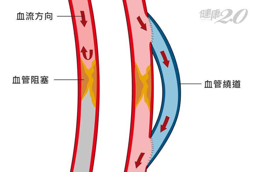 冠狀動脈繞道術後,血管會再次阻塞嗎?醫師點出3大忌