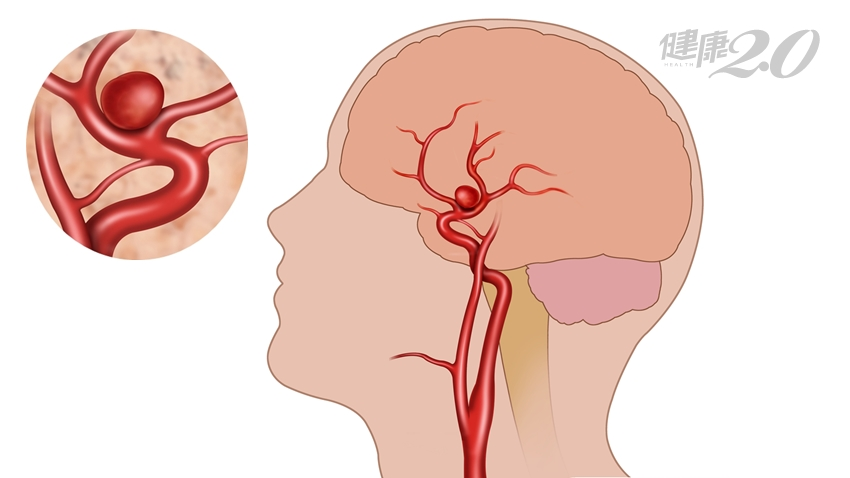 摘除腦內1.8公分炸彈!三高患者是高危險群、1項檢查不可少