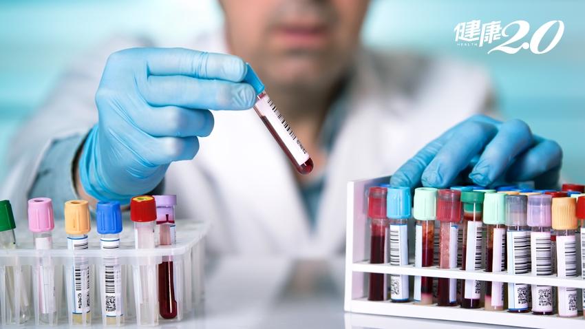 讀懂血液檢查數值:紅血球、白血球、血小板太高或太低 身體出了什麼問題?
