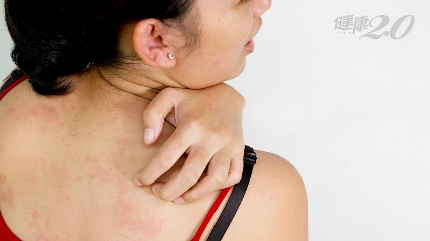 改善春季皮膚癢 牢記止癢3穴+2道茶飲 舒緩皮膚乾癢