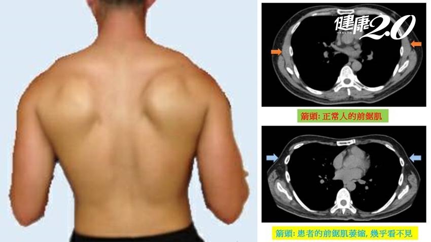 長期背重物,讓他練出「背肌」?醫師警告:這不是好事