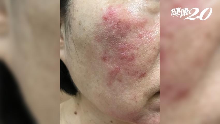 她戴口罩6小時,臉部泛紅、刺痛!皮膚科醫:戴口罩不要上妝