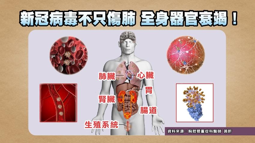 新冠病毒不只傷肺,小心這些器官都會衰竭!直擊專家的防疫包