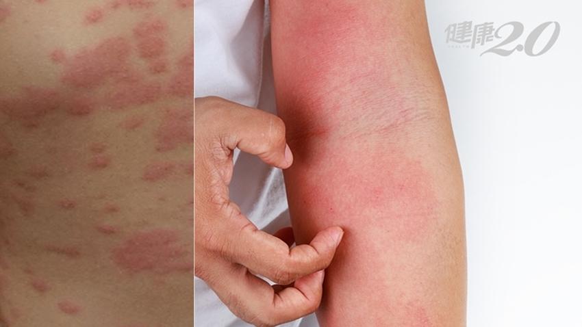 急性蕁麻疹50%找不出原因!驗過敏原有用嗎?「輕拍」可以緩解?