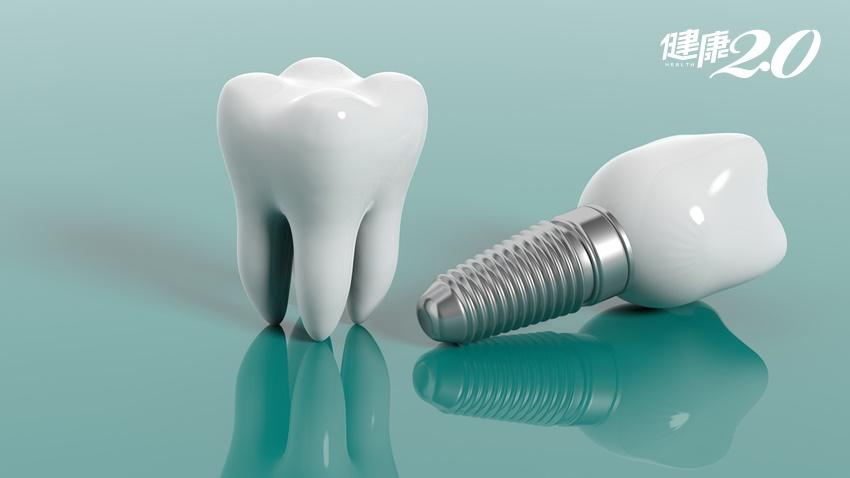 植牙、活動假牙、傳統牙橋哪個好?一張表分析優劣特點